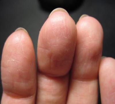 Почему трескается кожа на пальцах рук? - фото