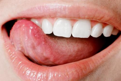 Почему болит язык? - фото