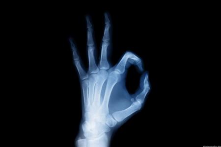 Почему рентгеновское излучение вредно? фото