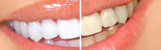 Кому нельзя делать отбеливание зубов? фото