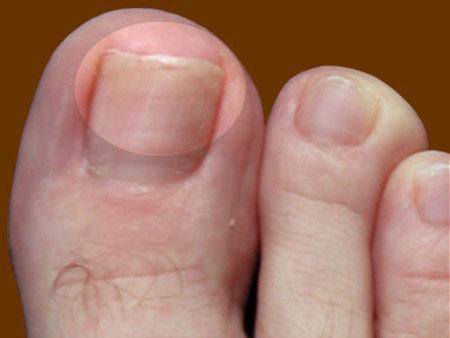 Как вылечить грибок ногтей на ногах? - фото