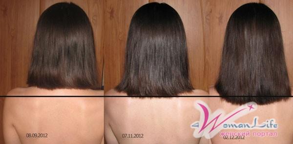 Почему волосы растут быстро? фото