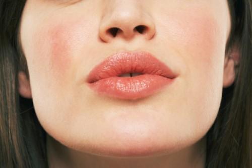 Почему шелушатся губы? фото