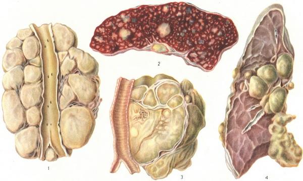 Как лечить лимфому? фото