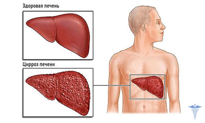 Почему гепатит С называют ласковым убийцей? фото