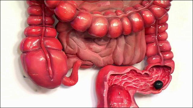 Как лечить полипы в кишечнике? фото