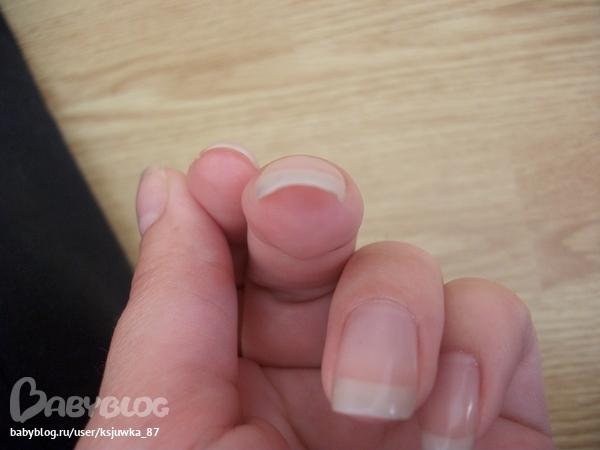 Почему на руках загибаются ногти на руках