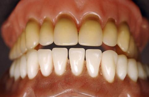 Какие бывают болезни зубов? фото