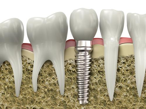 Как зубы крепятся к челюсти? фото
