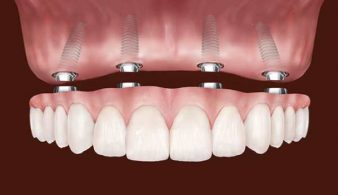 Протезирование-зубов-на-имплантах