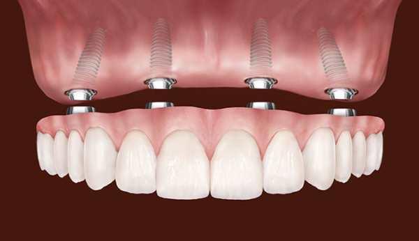 Сколько стоит протезирование зубов на имплантах? фото