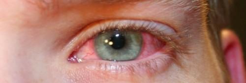 Почему краснеют глаза после душа? фото