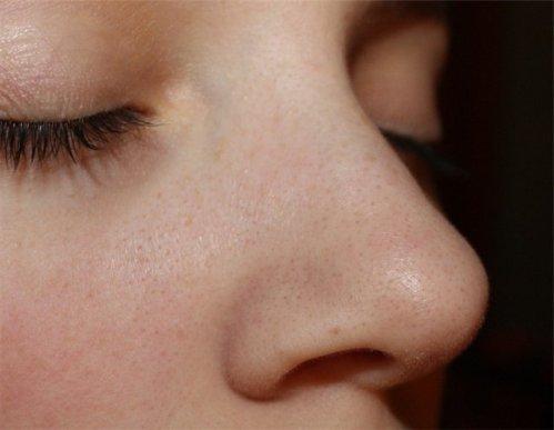 убрать черные точки на лице