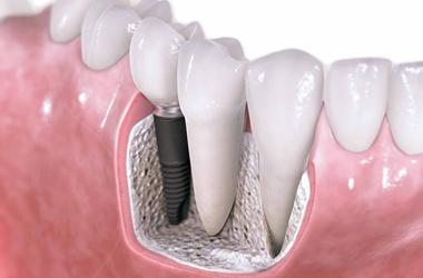 Как имплантируют зубы? фото