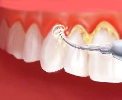 Как стоматологи удаляют зубной камень? фото
