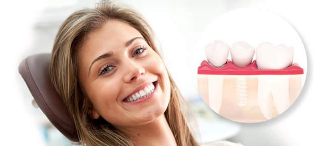 Какие импланты для зубов лучше? фото