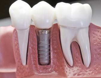 Один раз и навсегда: зубные импланты всё больше популярны фото