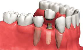 Какие имплантаты лучше выбрать для имплантации зубов? фото