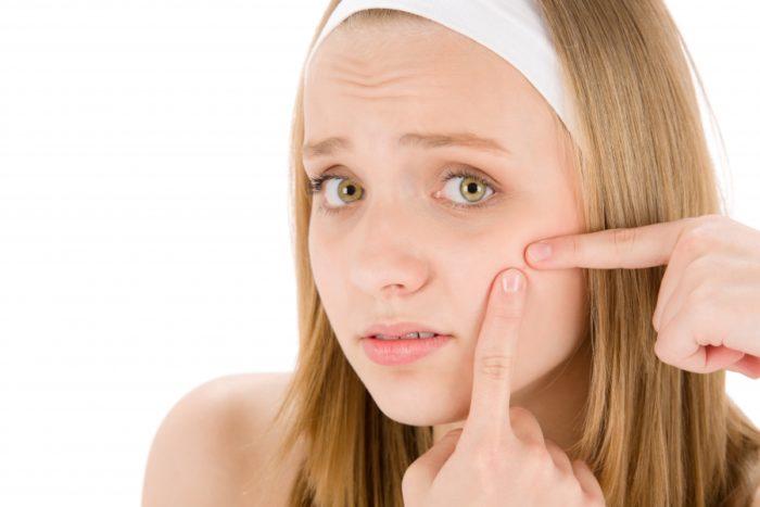 Как подростку ухаживать за кожей? - фото
