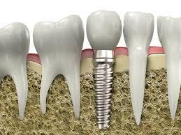 Какие бывают виды имплантации зубов? - фото