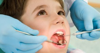 Close-up of little boy opening his mouth wide during inspection of oral cavity