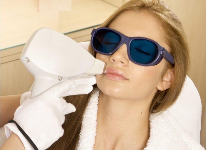 Что нужно знать, делая лазерную эпиляцию лица? фото