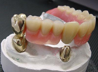 В чем преимущества телескопических зубных протезов? фото