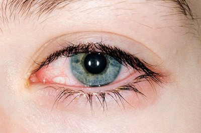 Как вылечить глаза от коньюктивита?  фото