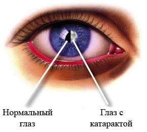 Как определить катаракту глаза? - фото