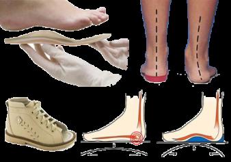 ortopedicheskaya-obuv-kiev