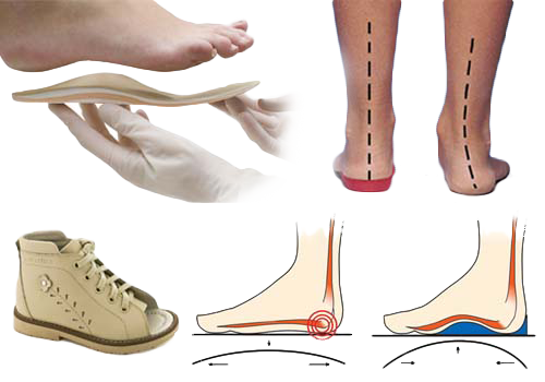 В чем преимущества ортопедической обуви? фото