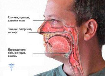 otek-kvinke-simptomy-i-lechenie