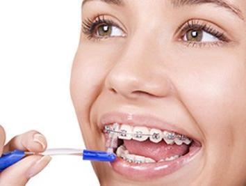 Как правильно чистить зубы с брекетами? фото