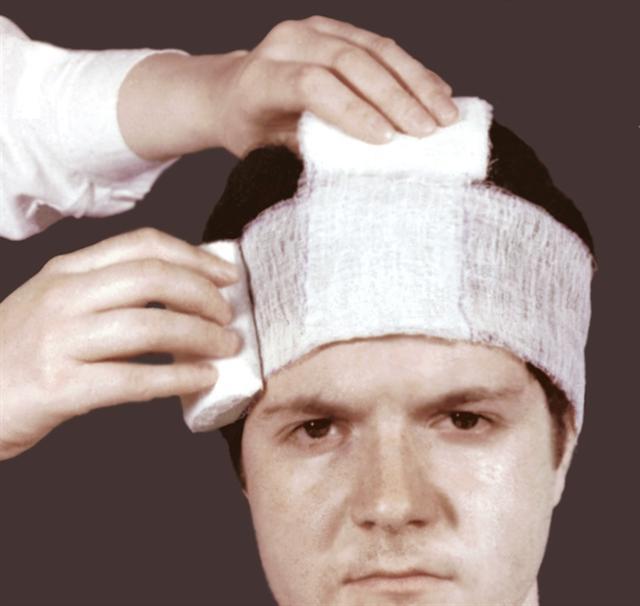 К чему снится разбитая голова? - фото