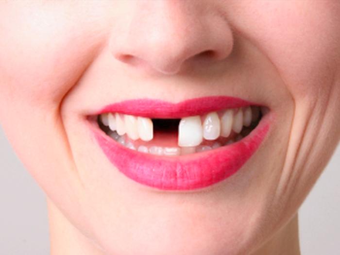 Что означает сон если выпал передний зуб