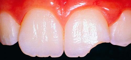 К чему снятся зубы, что выпадают и крошатся? фото