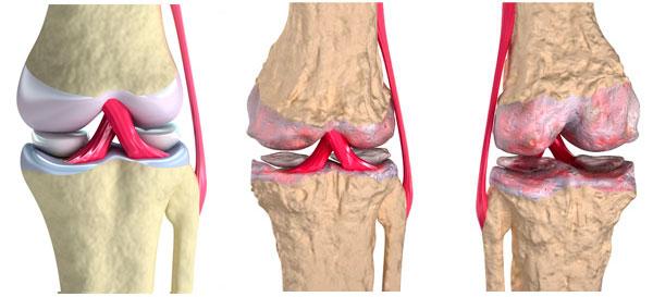 К чему приводят заболевания суставов и как этого не допустить - фото