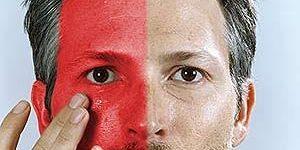 Почему краснеет лицо без причины у мужчин? фото
