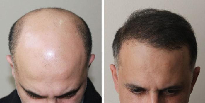 Как проводится пересадка волос? фото