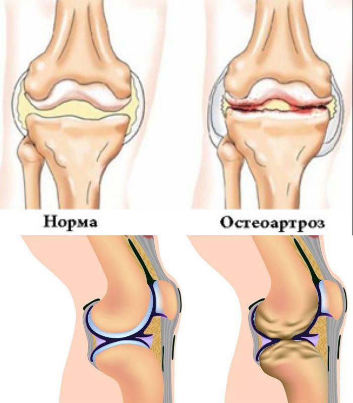 Какие симптомы у остеоартроза? фото