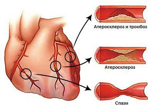 Как избежать инфаркта миокарда? фото