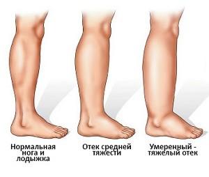 Почему отекают ноги? фото