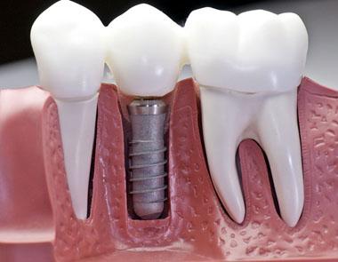 Какие существуют виды имплантов зубов? фото