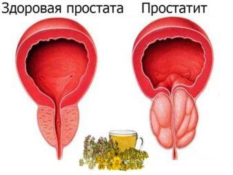 Средства диагностики простатита фото