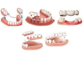 Какие бывают виды зубных протезов? фото