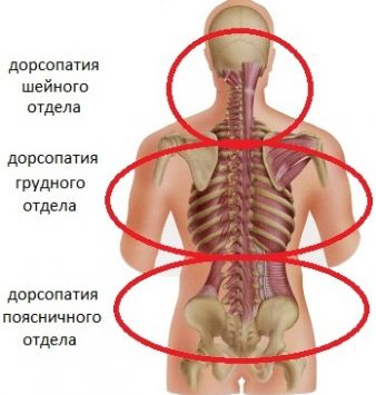 Как лечить дорсопатию позвоночника? фото
