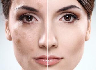 Как избавиться от пигментных пятен на лице? фото