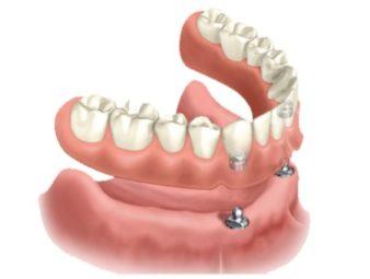 Какое протезирование зубов лучше? фото