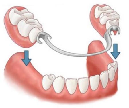 Какие зубные протезы лучше поставить? фото