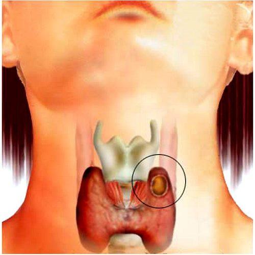 Узлы в щитовидной железе, чем опасны? фото